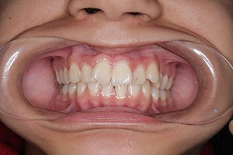 Fry Orthodontics Before And After10
