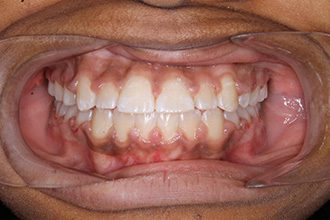 Fry Orthodontics Before And After13