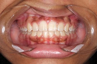 Fry Orthodontics Before And After25