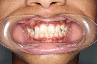 Fry Orthodontics Before And After26