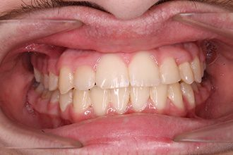 Fry Orthodontics Before And After29