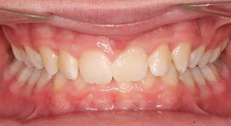 Fry Orthodontics Before And After33