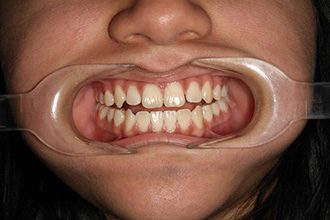 Fry Orthodontics Before And After38