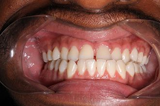 Fry Orthodontics Before And After42