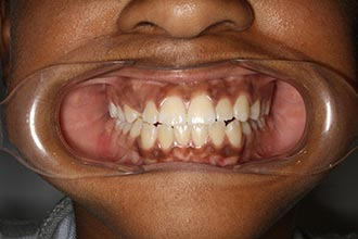 Fry Orthodontics Before And After14